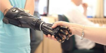 5 Bionic Devices Improving Lives Today